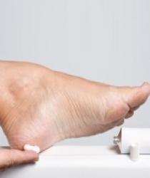 Ayak Egzaması Nasıl Tedavi Edilir?