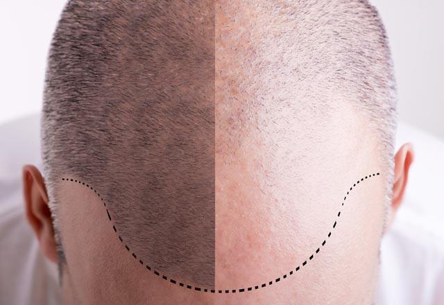 DHi saç ekiminin FUE saç ekiminden farkı nedir?