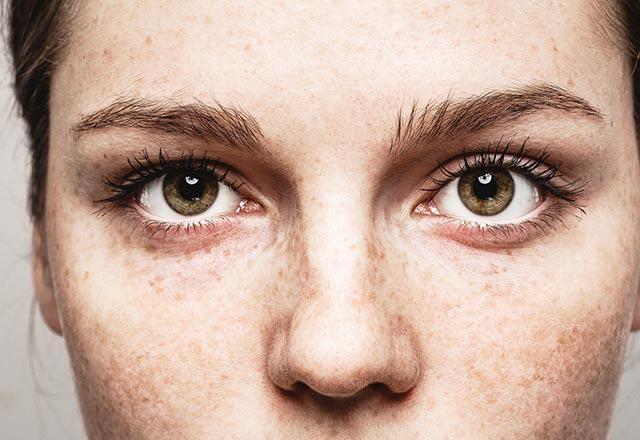 Göz altı dolgusu nedir?